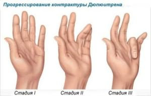 contracture-dupuytren
